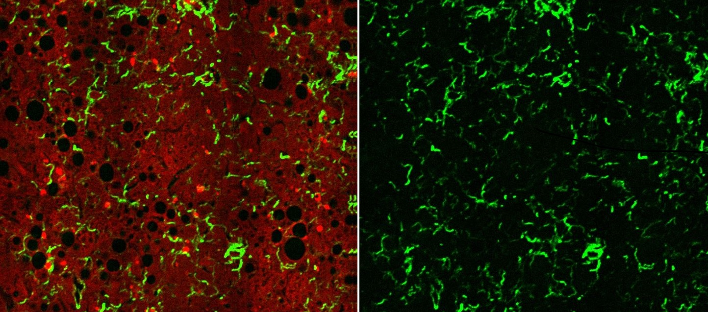 In Low Resolution for web:  Left : NASH Liver Model shows collagen strings (green, SHG) overlapping the Fluorescence Signal from NADPH (cells).  Right : the corresponding SHG / collagen image alone, that offers a great deal of information on the collagen content and structure, which is later quantified by our tools.