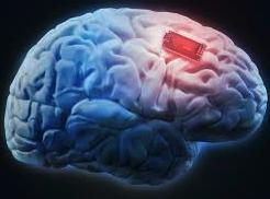 A Neuralink chip- Image Neuralink