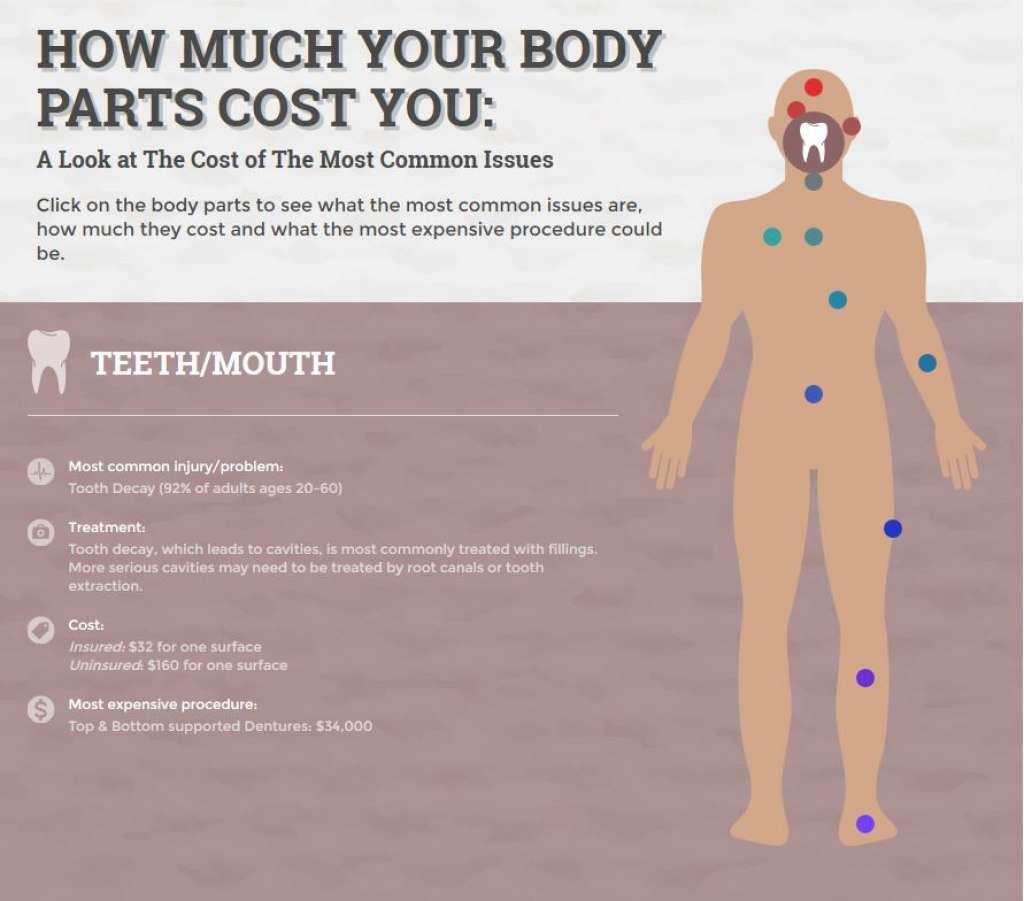 mouth/teeth