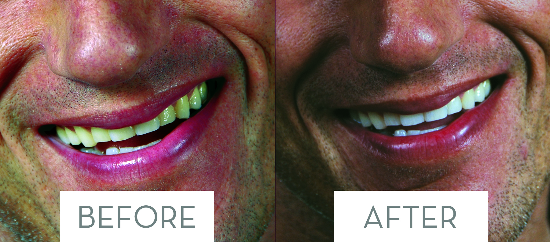 Before-After-closeup4.jpg