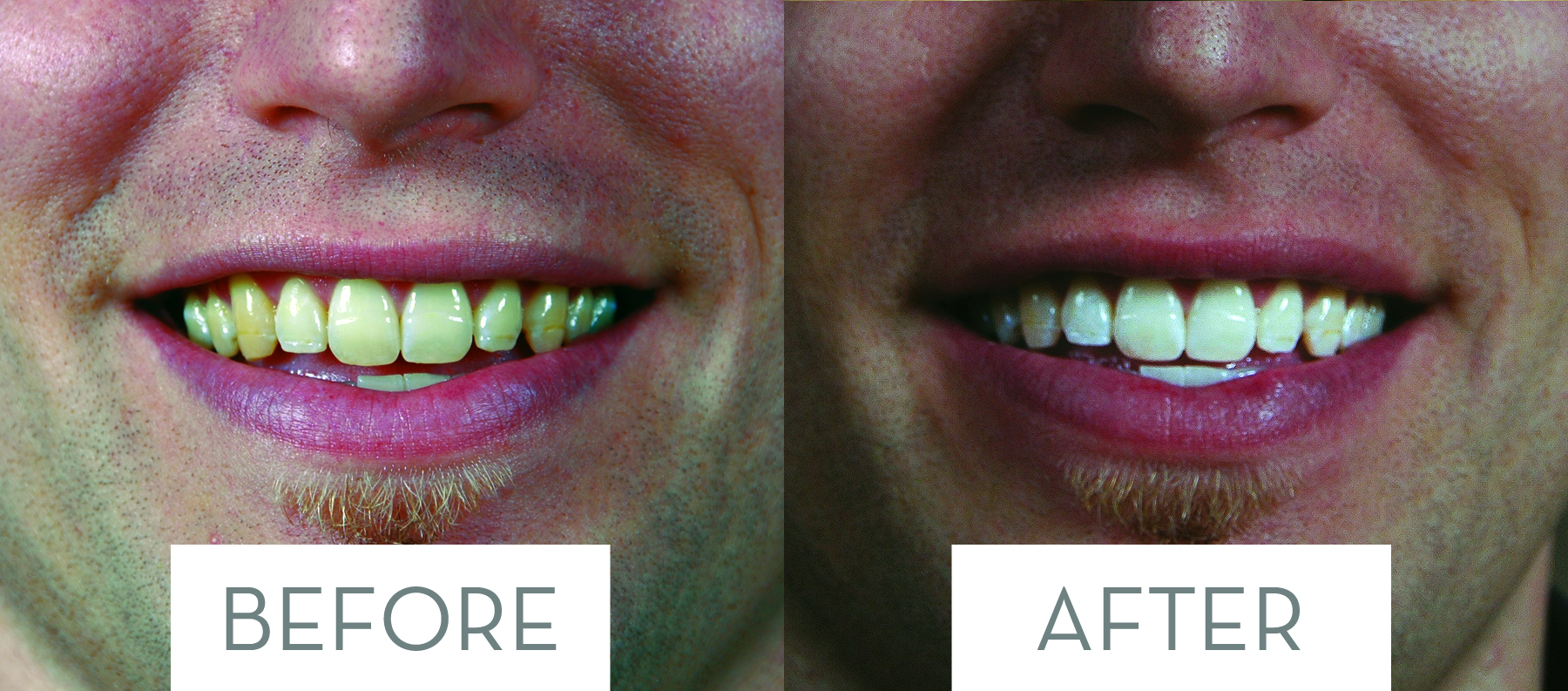 Before-After-closeup6.jpg