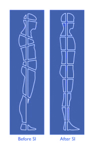 Structural Integration Before and After