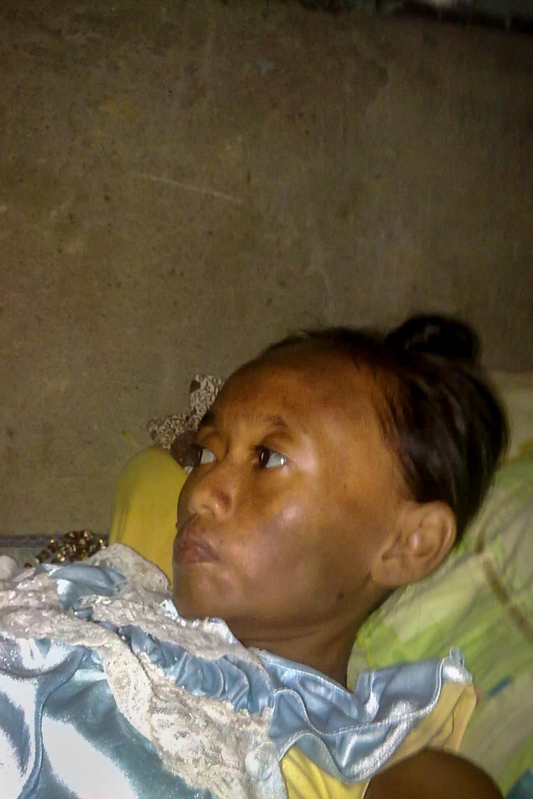 A portrait of Reni before taking ARV (Antiretroviral).