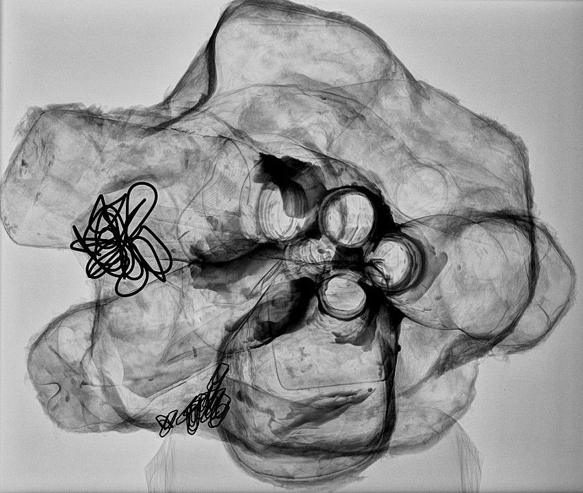 Sculpture X-ray 2, 2010