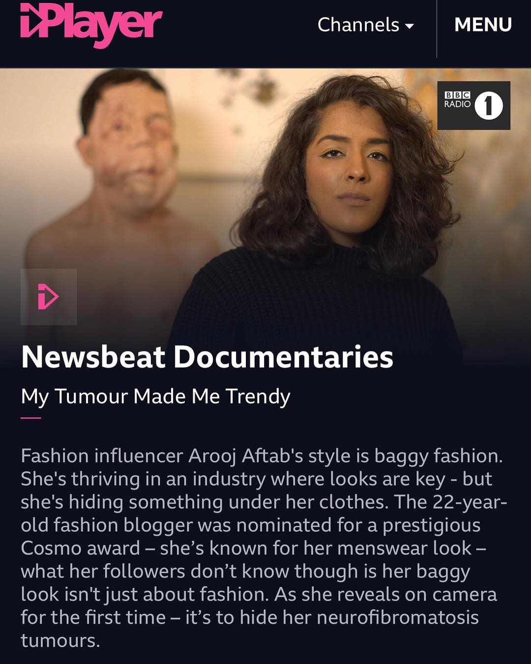 MY TUMOUR MADE ME TRENDY - A BBC NEWSBEAT DOSCUMENTARY