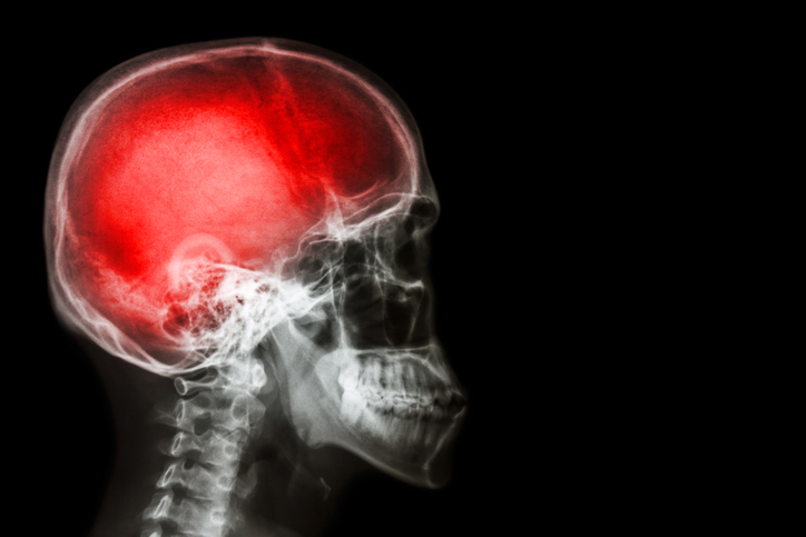Traumatic Brain Injury (TBI) Workers' Compensation