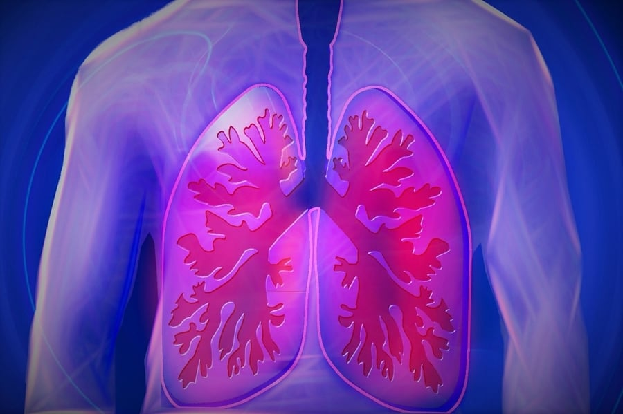 Lung Disease and Respiratory Injuries Gerald Brody San Diego