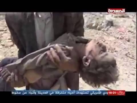 Saada, Yemen  4 June 2015