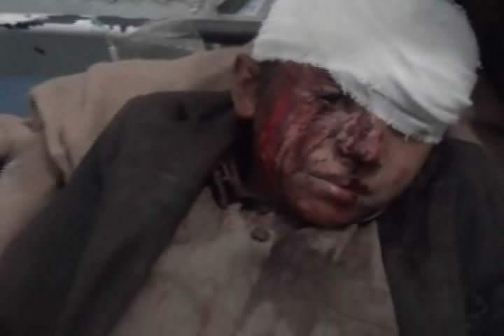 Joob Souk - Amran, Yemen  6 July 2015