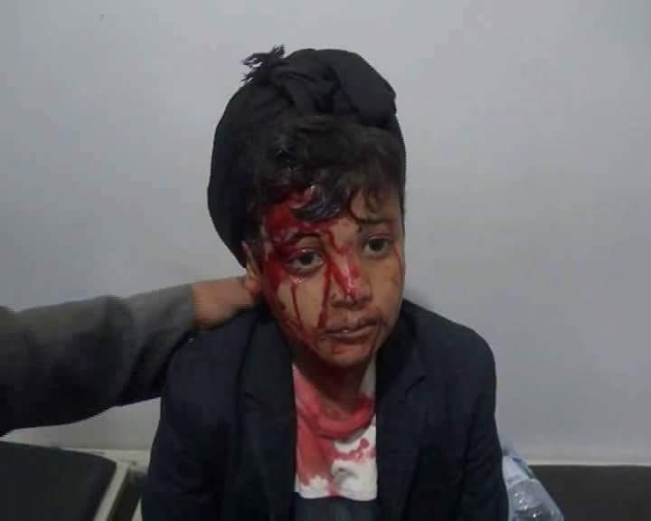 Hajja, Yemen  30May 2015