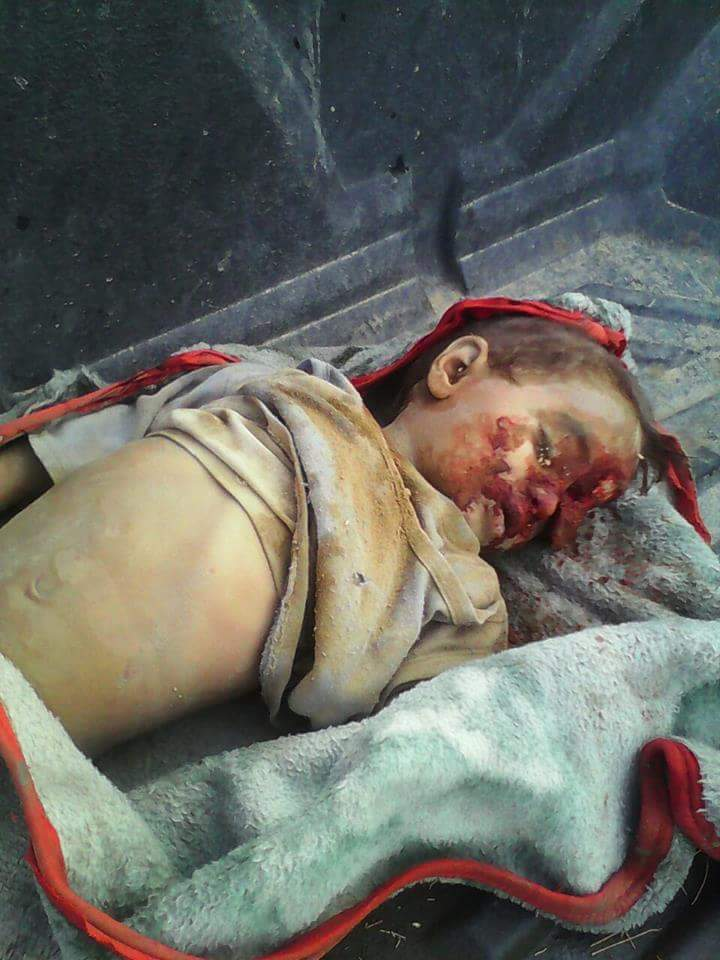 Amran, Yemen  9 August 2015