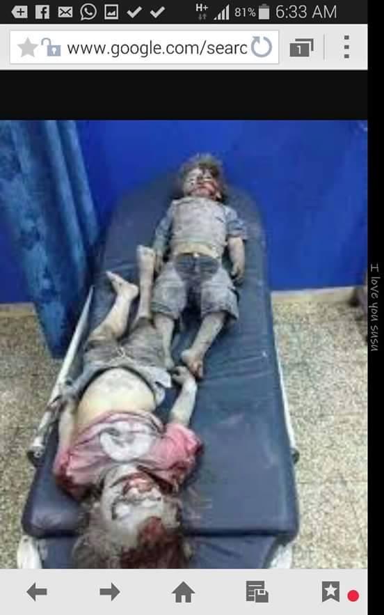Child 3 - Sanaa, Yemen - 26 March 2015.jpg
