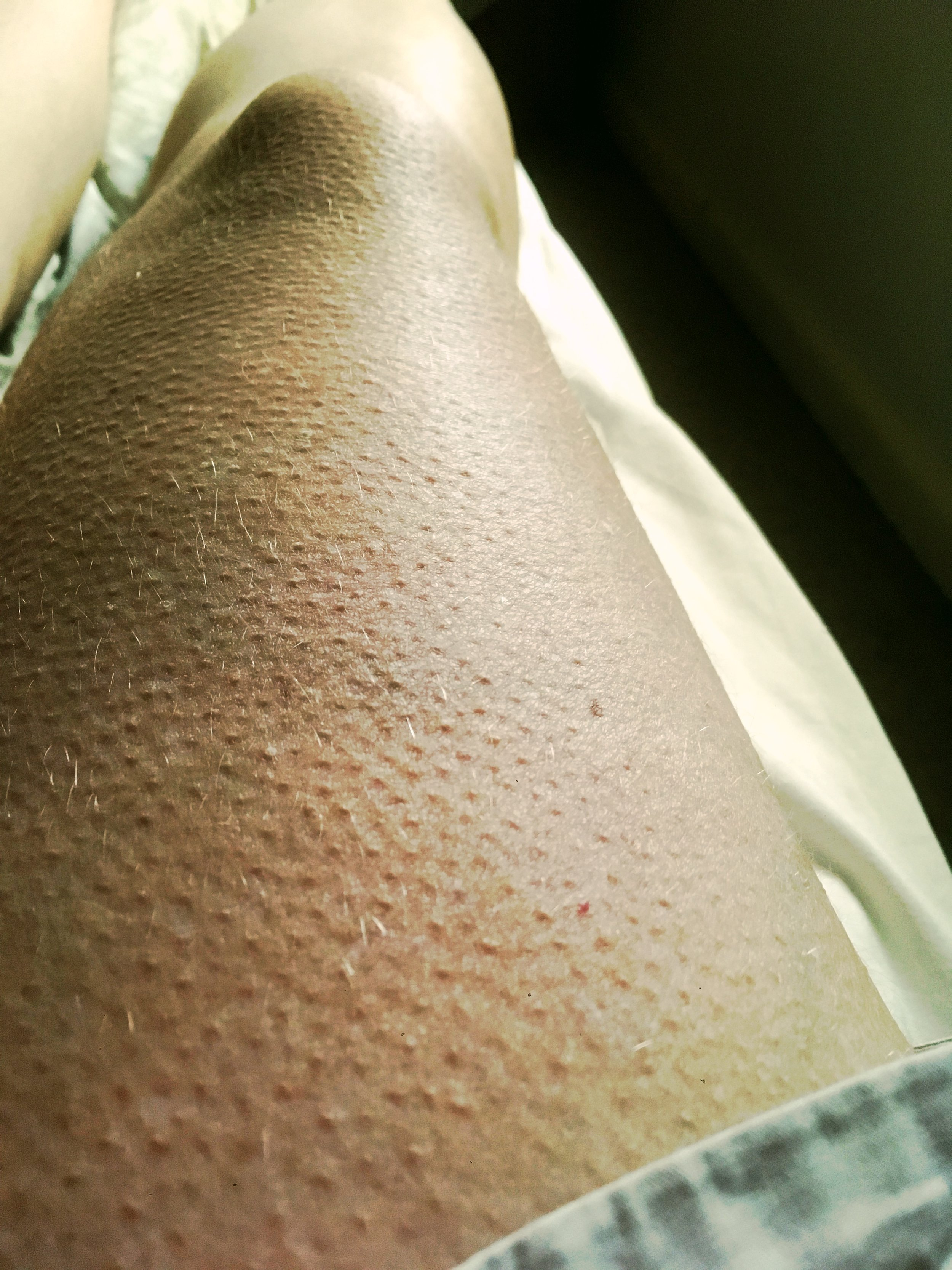 Goosebumps are real, my leg on a warm day