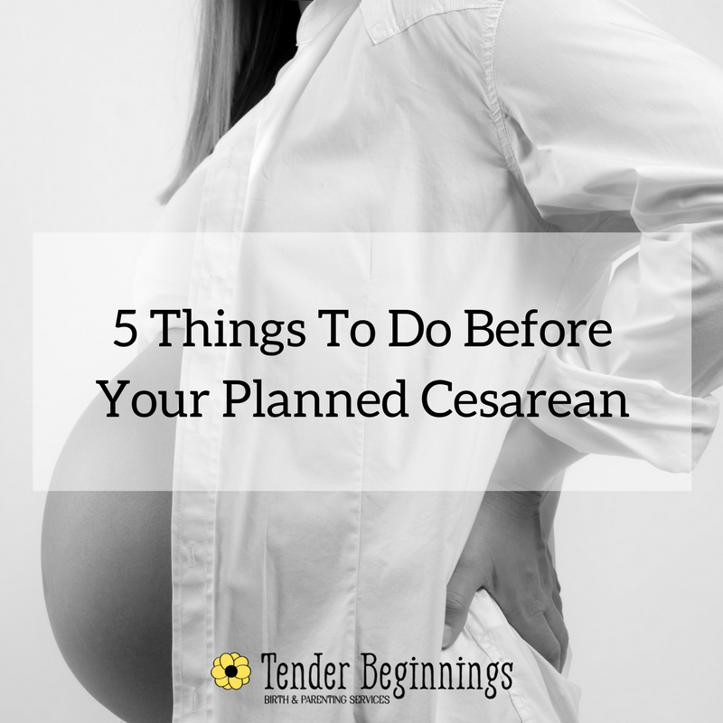 5 Things To Do Before Planned Cesarean