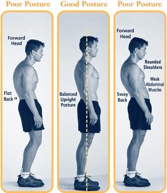 Bad-and-good-posture.jpg