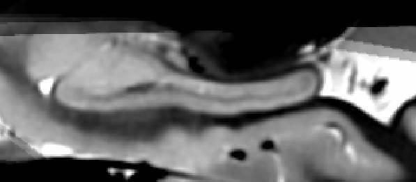 MRI scan of hippocampus (sagittal)