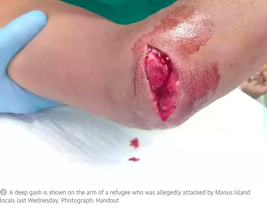 https://www.theguardian.com/australia-news/2017/jun/26/manus-island-refugee-needs-medical-treatment-in-australia-after-alleged-knife-attack