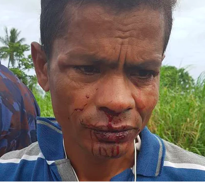 At the time of the attack Islam was still suffering from a damaged arm sliced open several months ago. Photograph: Supplied from Manus Island (https://www.theguardian.com/australia-news/2017/dec/20/manus-refugee-attacked-fsecond-time-amid-tension-over-australian-centres