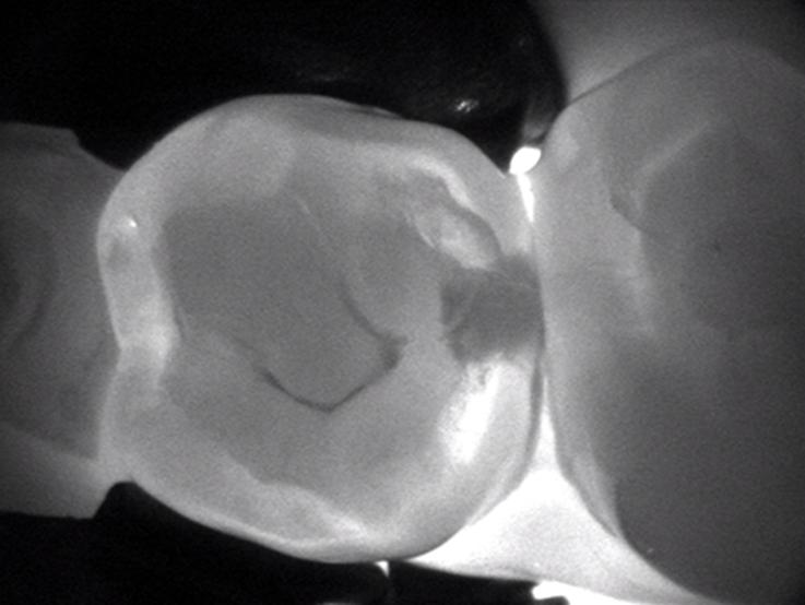 Bellevue Dental Arts Dexis Carivu tooth decay detection