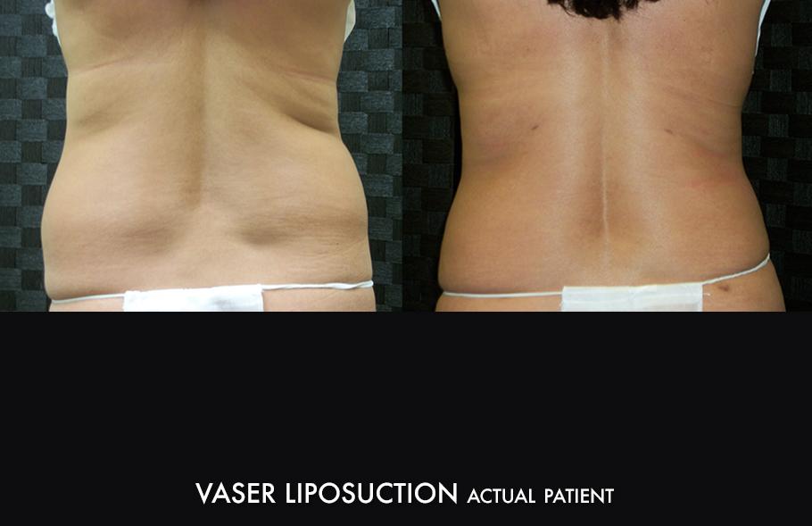 Dr. Kirk Northern Colorado Vaser Liposuction