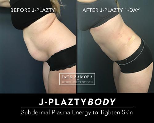 j-plazty-body-by-dr-jack-zamora