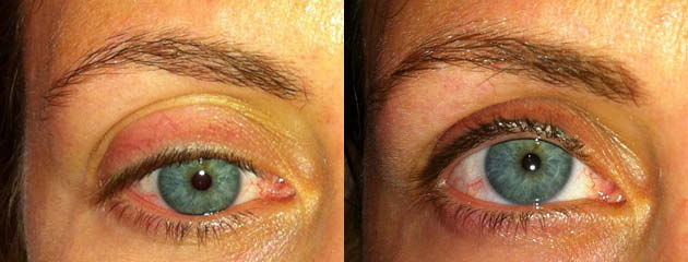 Natural looking lash and brow enhancement. Healed at one month.