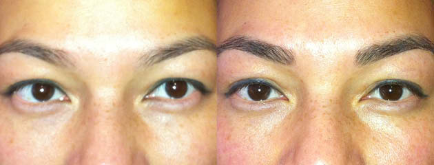 Brow enhancement. Healed at one month.