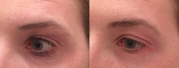 Soft and natural brow powder effect. Healed post one treatment at six weeks.