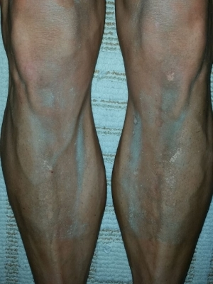 Post-race dust-encrusted legs!