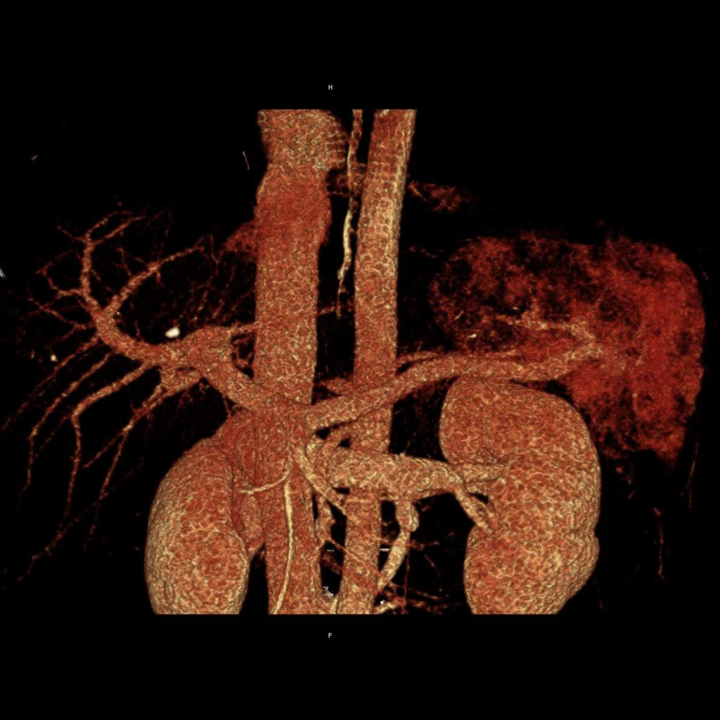 0017 VRT VENOUS LR.0002.jpg