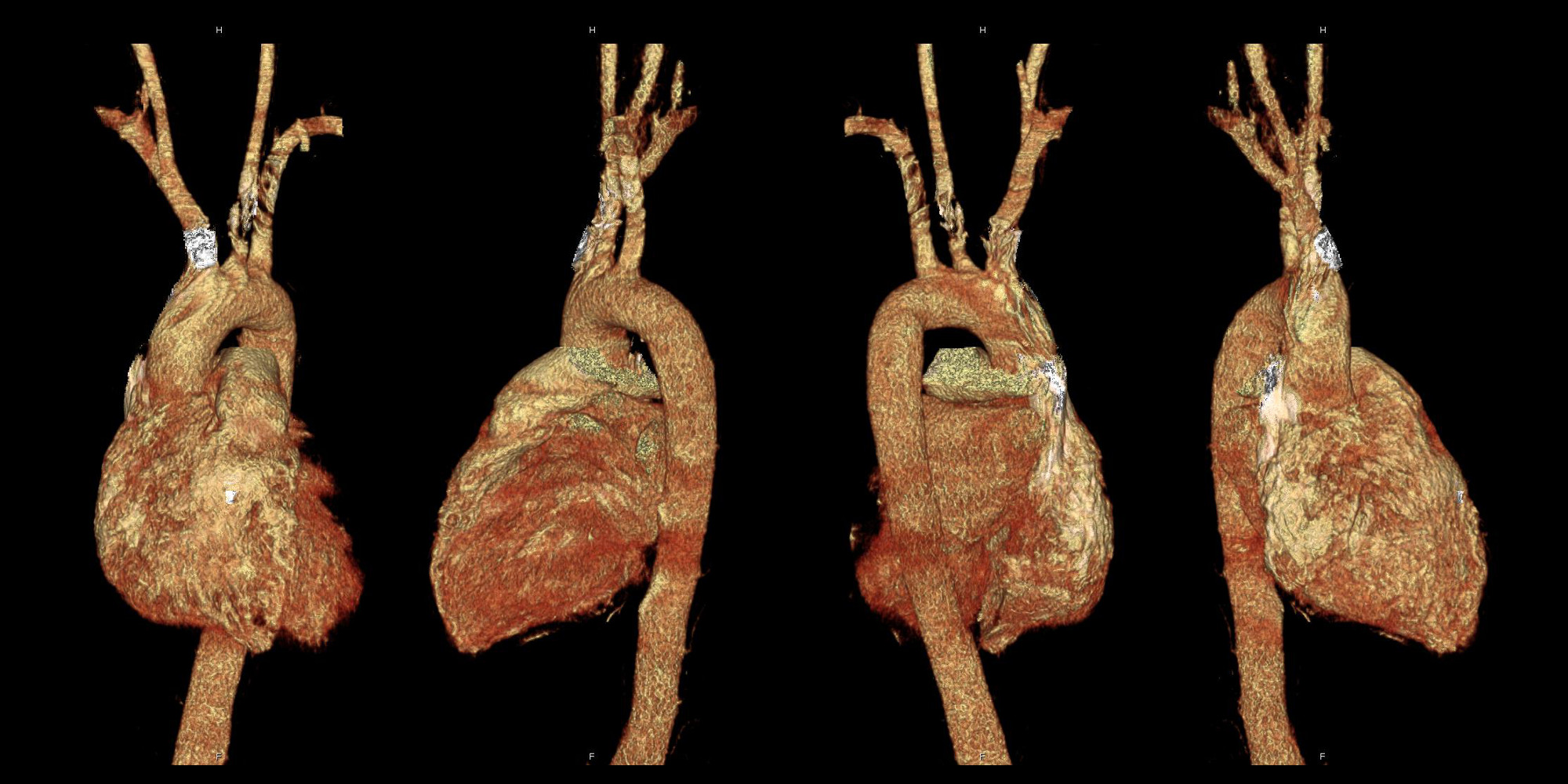 3DR Laboratories Aorta