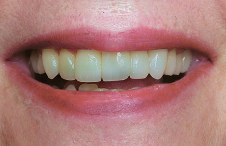 Cosmetic Dentistry Before Photo