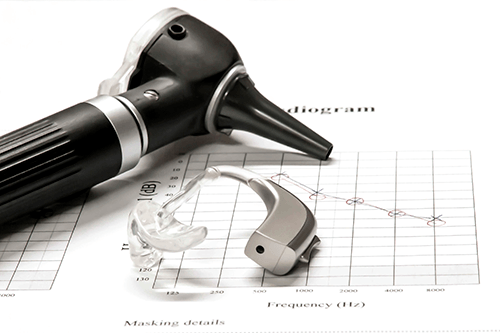 Photo of Otoscope and Hearing Aid laying on a chart