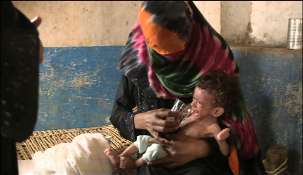 Yemen starvation 03.JPG