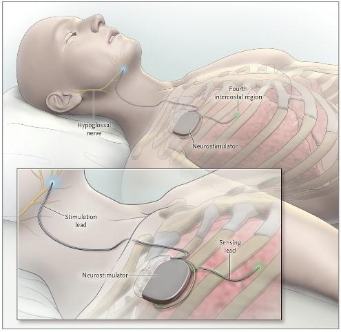 Upper Airway Stimulation in OSA (Figure courtesy B. Bender (5))