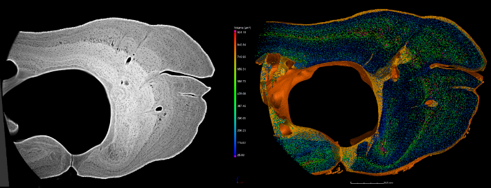 Armin Schmitt, Prof Roger Benson, Dr Donald Davesne & Marie Zdora-Bone Cells in the Rib of a Carp