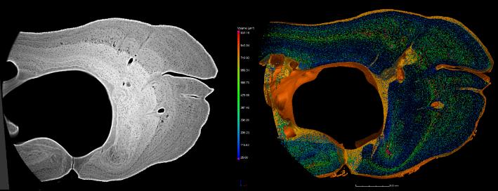 Bone Cells in the Rib of a Carp- Best Visual Impact