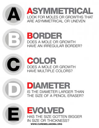 A- Asymmetrical Shape:Melanoma lesions are often irregular, or not symmetrical, in shape. Benign moles are usually symmetrical.  B- Border:Typically, non-cancerous moles have smooth, even borders. Melanoma lesions usually have irregular borders that are difficult to define.  C- Color:The presence of more than one color (blue, black, brown, tan, etc.) or the uneven distribution of color can sometimes be a warning sign of melanoma. Benign moles are usually a single shade of brown or tan.  D- Diameter:Melanoma lesions are often greater than 6 millimeters in diameter (approximately the size of a pencil eraser).  E- Evolution:The evolution of your mole(s) has become the most important factor to consider when it comes to diagnosing a melanoma. Knowing what is normal for you could save your life. If a mole has gone through recent changes in color and/or size, bring it to the attention of a dermatologist immediately.