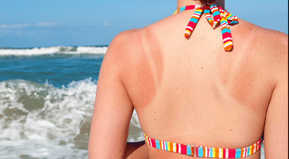 Home-Remedies-Treat-Skin-Care-Sunburn-free-tips.png