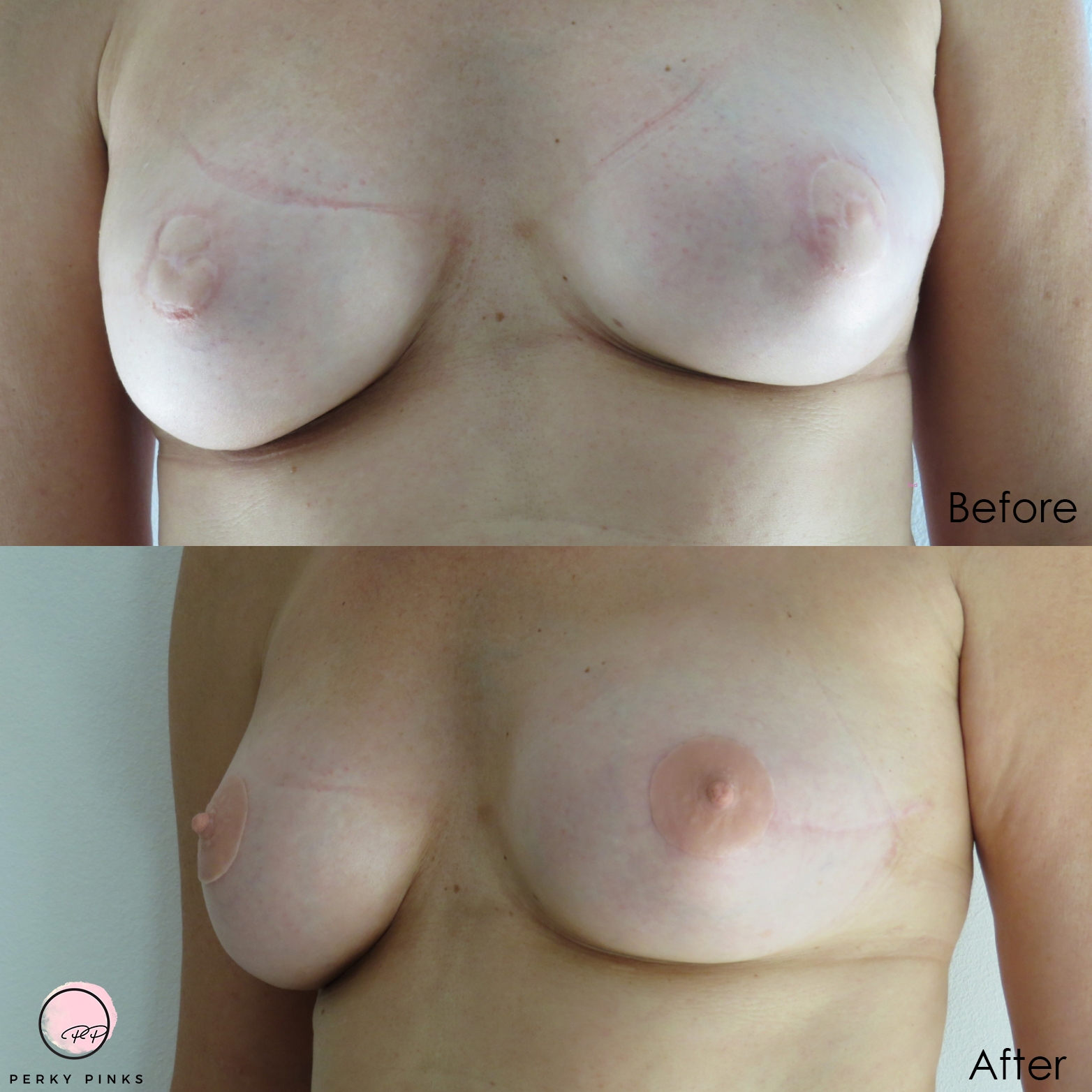 Breast cancer survivor's reconstructed breasts before and after Perky Pink silicone adhesive nipple prosthetics