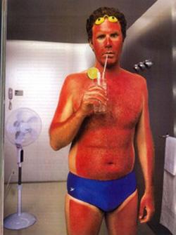 sunburn-funny