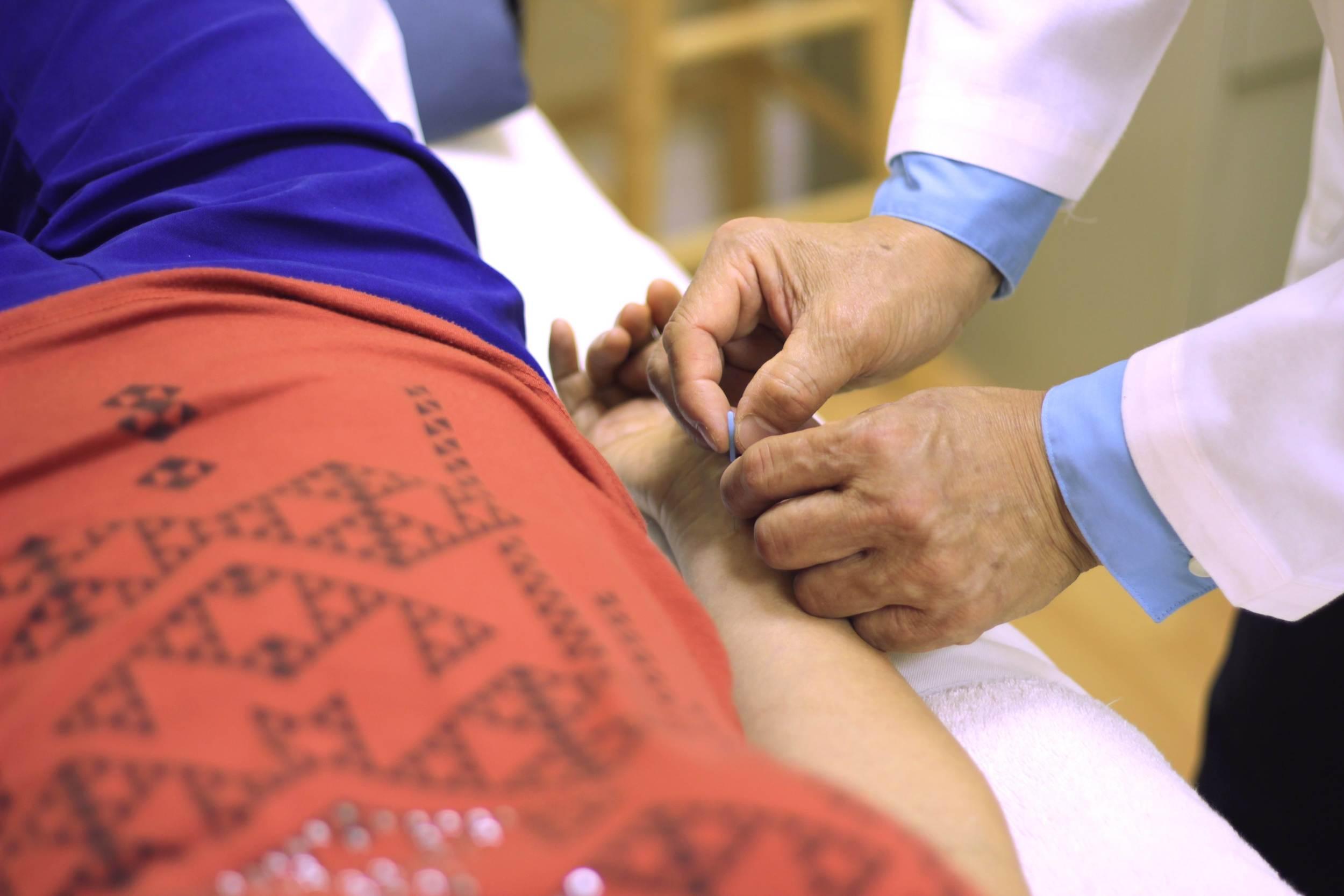 Acupuncture 5.jpg