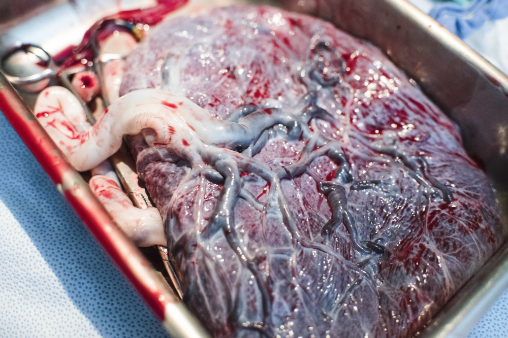 The Tree of Life comes from the way the veins branch out into the placenta.