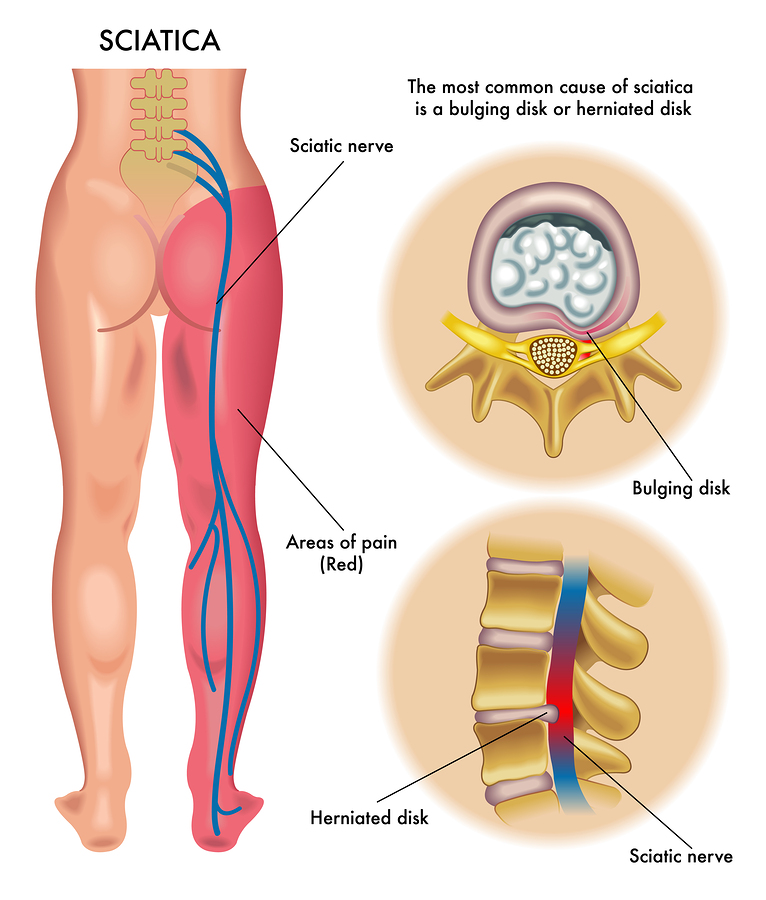 Sciatica refers to pain that radiates along the path of your sciatic nerve, which branches from your lower back at L1-S1, goes through your hips and buttocks, and down each leg. At Platinum Chiropractic we approach this problem from the roots.