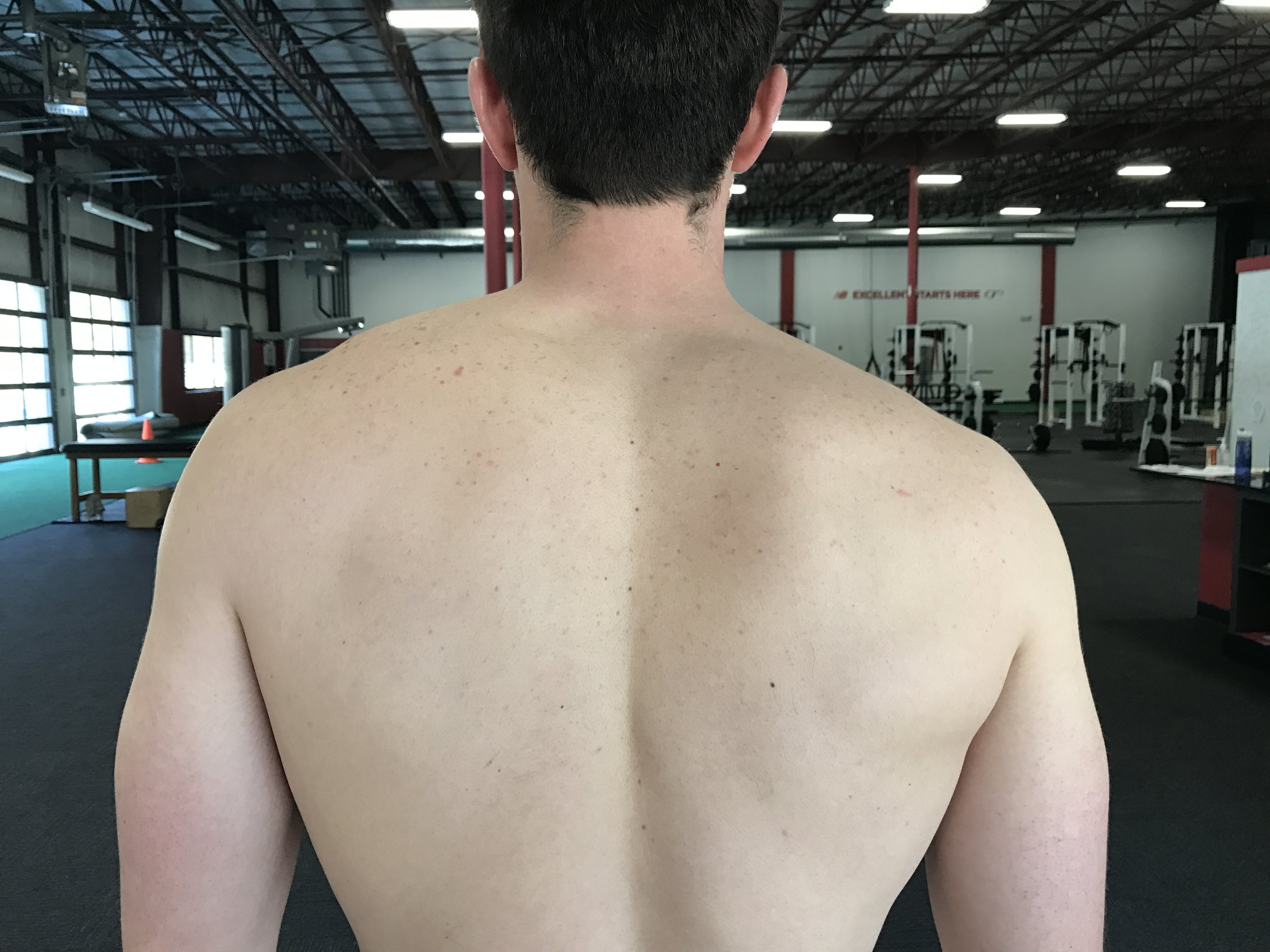 Low right shoulder