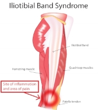 Iliotibial_Band_Syndrome.jpg