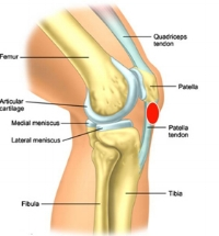 tendinitis-overuse-injuries-0008.jpg