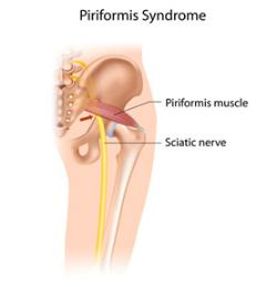 piriformis-syndrome.png