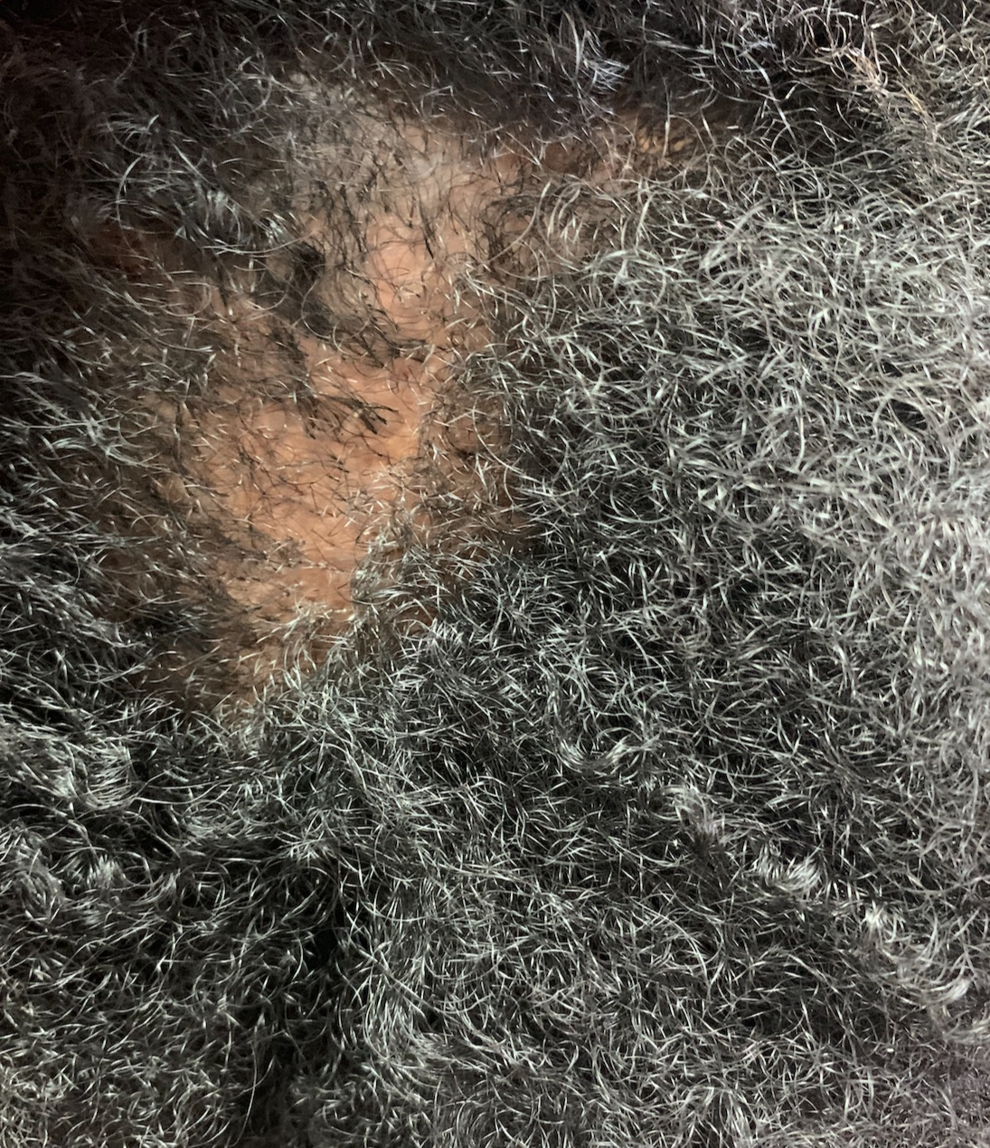This auto immune disease attacks your own body. It attacks your hair follicles . this causes the hair to come out in clumps and missing hair spots can be the size of a quarter. There are treatments to help grow the hair quickly. But why let it get there when you can just prevent it.