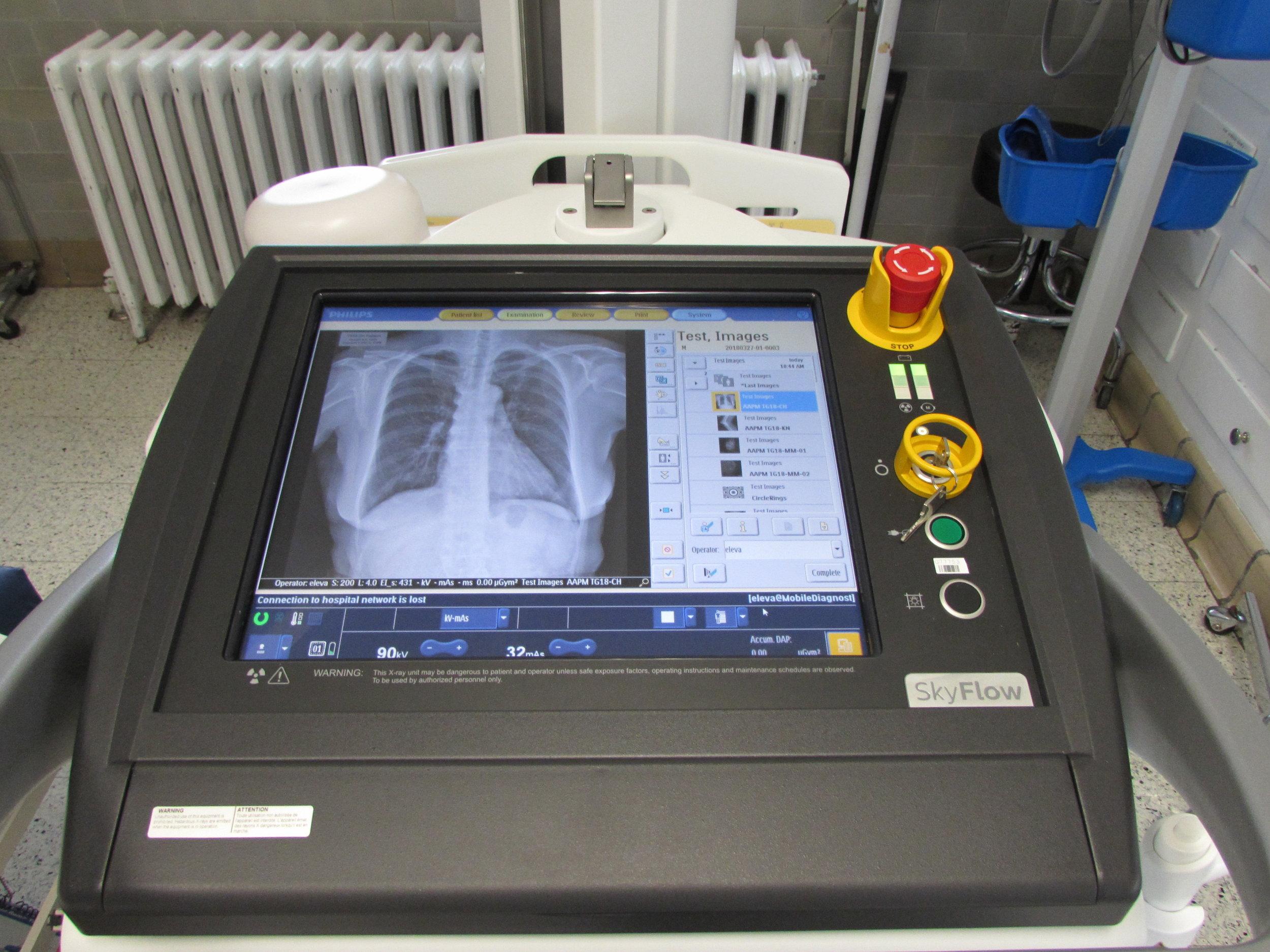 Digital x-ray (2).JPG